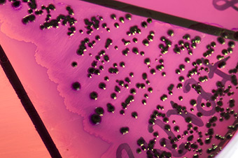 A bacterial culture